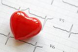 cardiogram-heart-pulse-trace-concept-cardiovascular-medical-exam-32285203